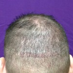 Hair Transplant Scar Right After