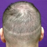 Hair Transplant Scar Before