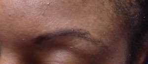 Hairstroke Eyebrows, Before