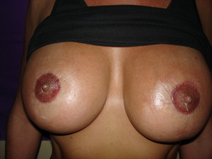 After Areola Restoration