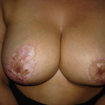 Areola Restoration and Camoflauge Treatment Before