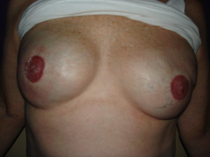 Areola Restoration Right After
